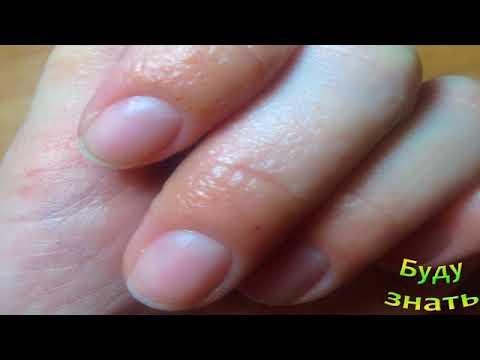 Аллергия - Серьезное заболевание! Что иметь под рукой?