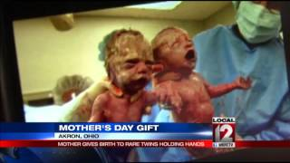 Mother gives birth to rare twins holding hands thumbnail