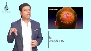 CASE STUDY & RESULT - CROWN  HAIR TRANSPLANT सबसे DIFFICULT  क्यों है ? - DR ASHOK SINHA