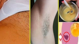 Natural Way to Remove Unwanted Hair Permanently At Home - health and fitness || Life Care