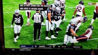 Akiem Hicks #96 elbow dislocation injury Bears/Raiders