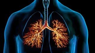 видео Лечение аллергического бронхита и его профилактика