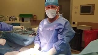 MUTLULUK ÇUBUĞU AMELİYATI (Penil Protez Ameliyatı - Nasıl Çalıştığı)