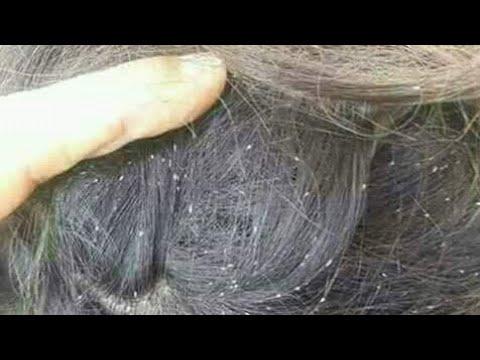 النوع الأمامي رقيق احتمالا طرق تنظيف الشعر من القمل والصيبان Dsvdedommel Com