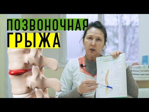 Позвоночная грыжа | Дорсопатия, остеохондроз