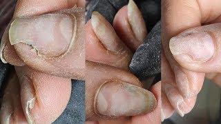 Онихолизис протезирование онихолизиса на руках
