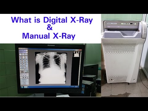What is Digital X-ray | Manual X -Ray |