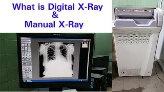 What is Digital X-ray   Manual X -Ray  