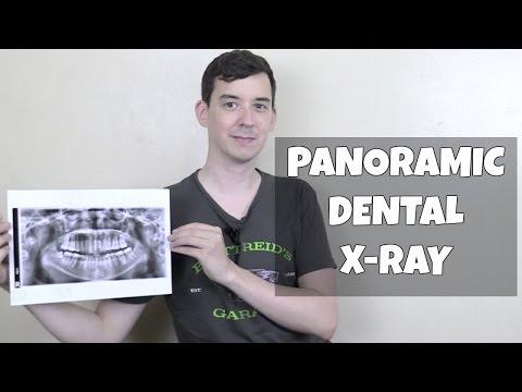 Panoramic dental X-ray at Lapid dental center