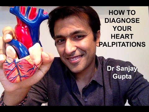 How to diagnose your own palpitations