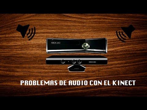 Solucionar problemas de audio del kinect | AUDIO PROBLEMS XBOX 360
