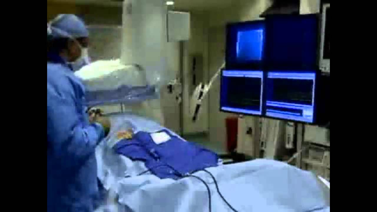Electrophysiology Study (EPS) - YouTube