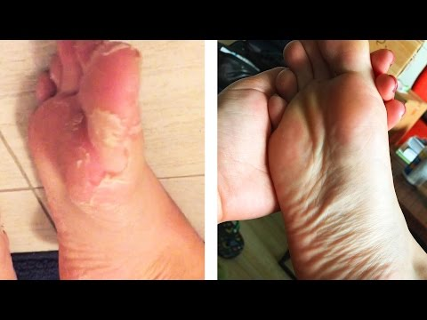 Thumbnail: People Peel Dead Skin From Their Feet