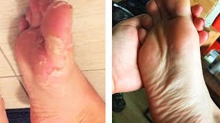 People Peel Dead Skin From Their Feet