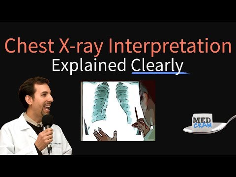 Chest X-Ray Interpretation Explained Clearly - How to read a CXR