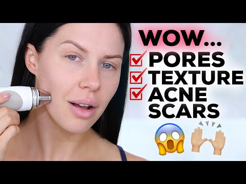 HOW TO SHRINK PORES, REDUCE TEXTURE & SMOOTH SKIN WITHOUT MAKEUP!!!