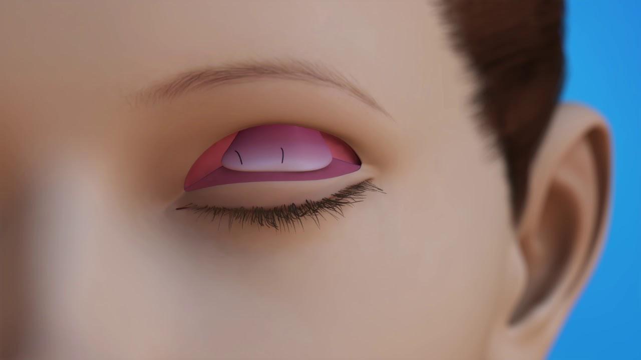 us ophthalmic oculoplastics ptosis repair