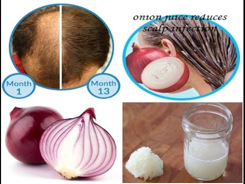 How To Use Onion Juice For Hair Regrowth And To Stop Hair