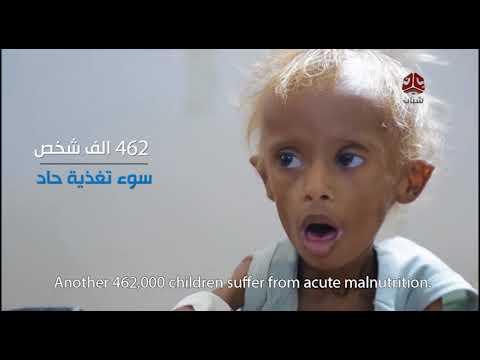 واقع الطفولة في اليمن .. أعوام بلا حماية | تقرير المرصد الحقوقي | يمن شباب