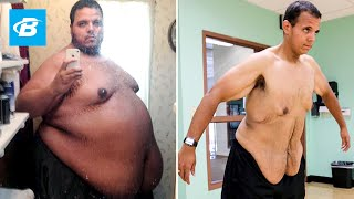 The Incredible Shrinking Man | Jesse Shand Lost 350 Pounds thumbnail