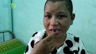 Đưa Y Nhiều cô gái bị tra tấn đi giám định thương tích
