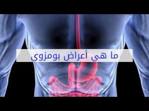 القولون العصبي أو  بومزوي  - الأستاذ يوسف الحماوي - الحلقة 29
