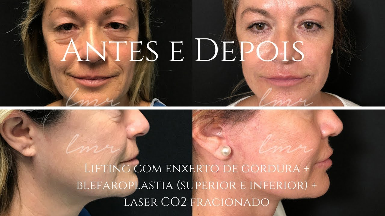 Blefaroplastia laser CO2