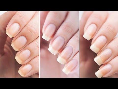 የተፈጥሮ ጥፍሬ በ7 ቀን ውስጥ ያሳደገልኝ|| WITH IN 7 Days Nails Growth Challenge|| Queen Zaii