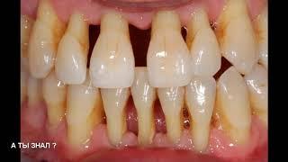 СТОМАТОЛОГИ СКРЫВАЮТ что вылечить пародонтоз и убрать зубной камень можно простым порошком