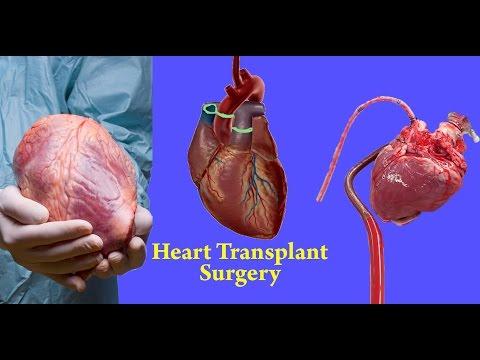 Heart Transplant Surgery Mobile Recording