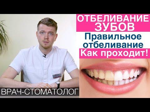Отбеливание зубов. Как правильно отбеливать зубы!