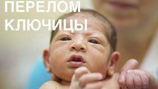 Перелом ключицы новорожденного || ОВП(В этом видеоролике Ольга Васильевна Паршикова рассказывает, как происходит перелом ключицы у новорожденно..., 2015-10-20T16:13:22.000Z)