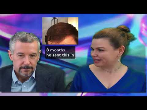 A younger patients hair restoration journey in Washington with Dr. Lindsey   McLean   VA