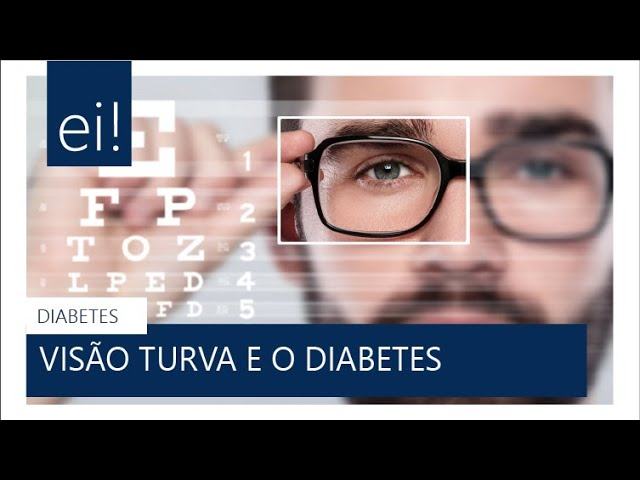 #DIABETES | Visão Turva no Diabetes (Retinopatia) -  Dra Fernanda Castro