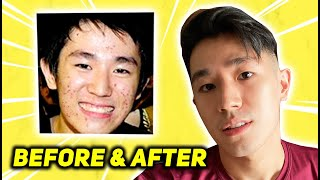 ROAD TO PORELESS HAHA (how i got rid of acne)
