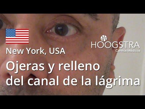 Ojeras y relleno del canal de la lágrima (16017)