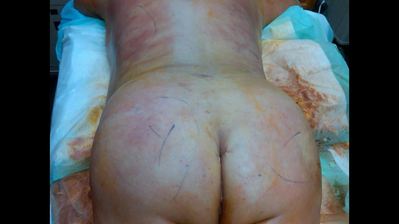 Brazilian Butt Augmentation Cost 21