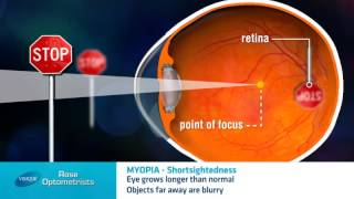 Short-sightedness - What is it? -  Rose Optometrists explain