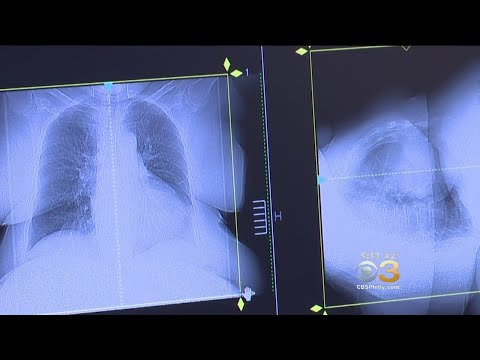 Young Women More Likely To Get Lung Cancer, Study Reveals