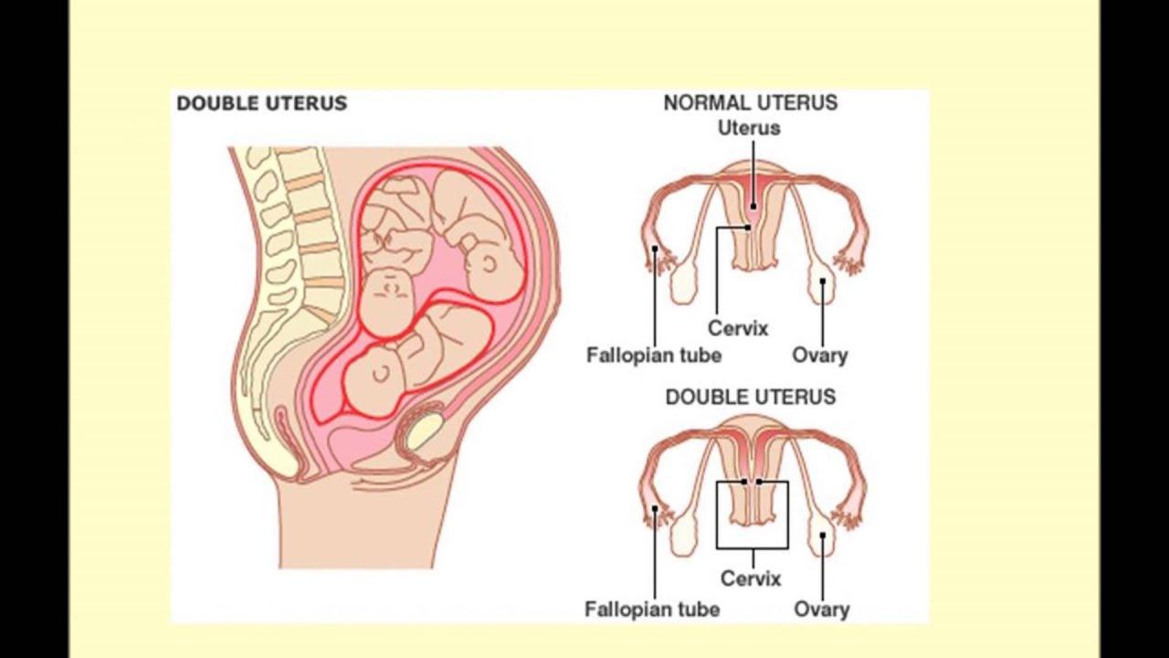 Symptoms uterus didelphys ii youtube premium ccuart Choice Image