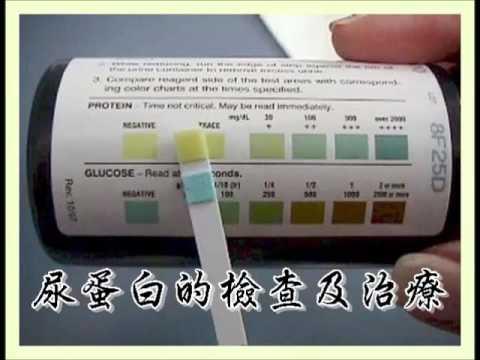 蛋白尿的檢查及治療(蛋白尿2)(回應網友) - YouTube