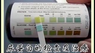 蛋白尿的檢查及治療(蛋白尿2)(回應網友)