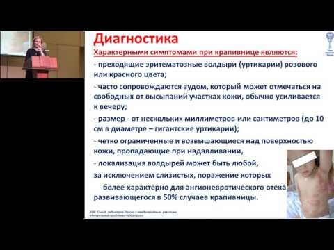 19.02.2017 - Клинические рекомендации: крапивница у детей