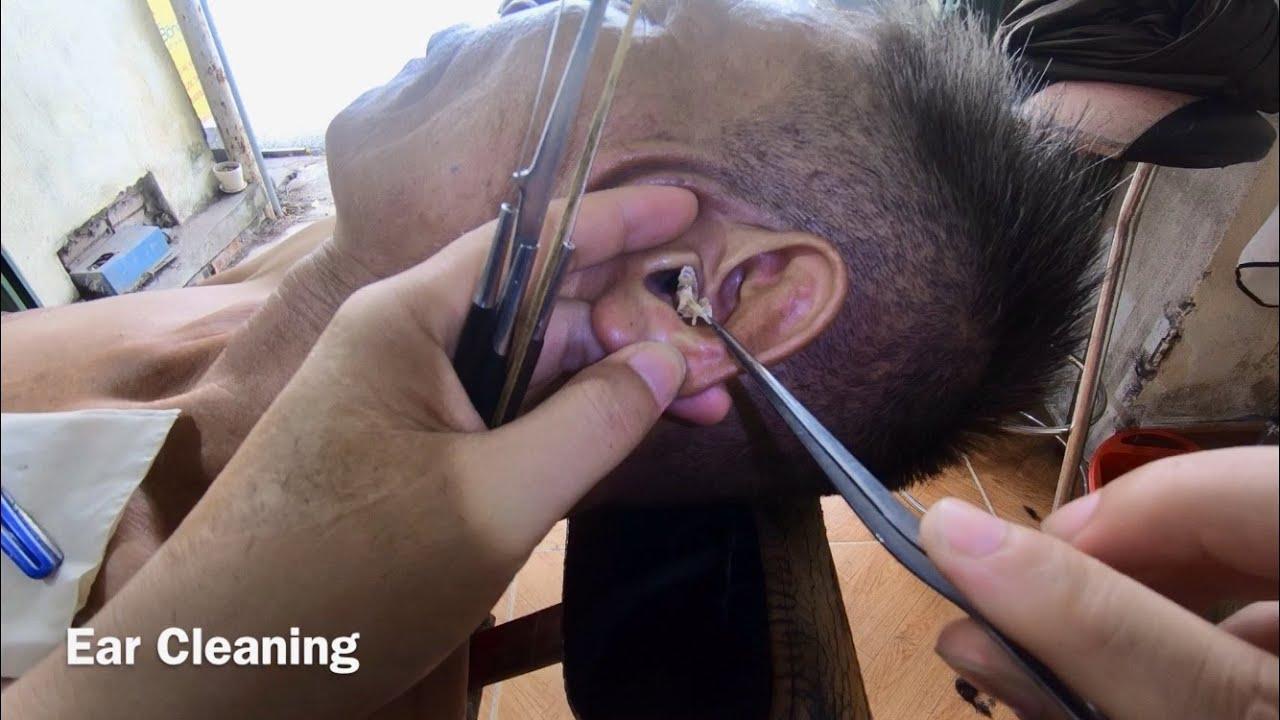 耳掃除 귀 청소 Ear Cleaning #219