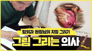 [서울GS항외과] 치질 그리는 의사  직접 과정 살펴보…