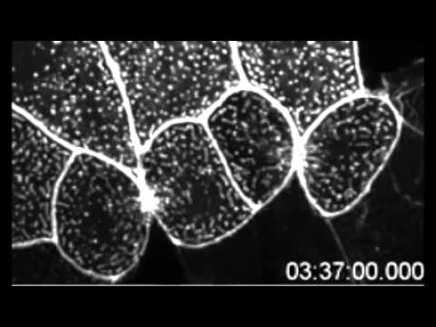 PLoS ONE : In Vivo Imaging and Characterization of Actin Microridges