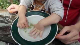 видео Вросший ноготь операция пластика околоногтевого валика