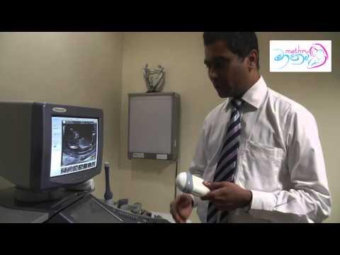 Ultra Sound Scan - Dating Scan - Dr Vijith Vidyabhushana
