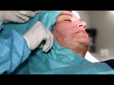 Entourage clinique esthétique suisse : Lifting du visage avec fils de suspension Aptos