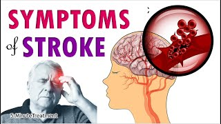 Stroke Symptoms | Signs of Stroke You Must Know | 5-Minute Treatment